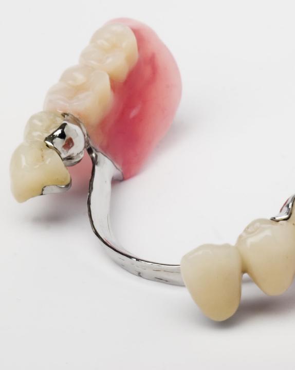 Füllungen und Zahnersatz